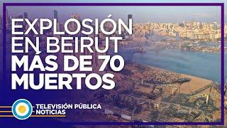 Líbano: explosiones en el puerto de Beirut dejaron más de 70 muertos