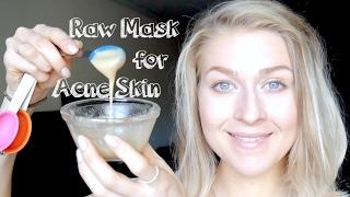Raw Face Mask for Acne: Honey, ACV, Baking Soda & Glowing Skin