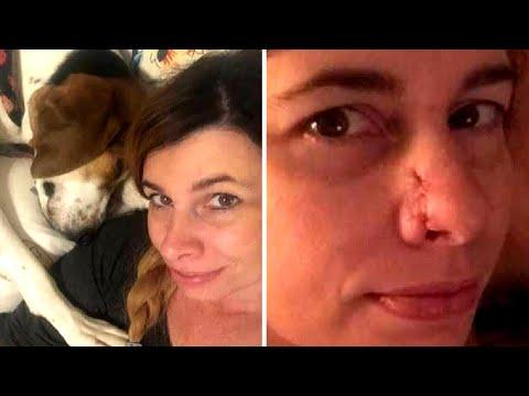 Hund riecht ständig an Frauchens Nase, dann realisiert sie - Es ist eine Warnung!