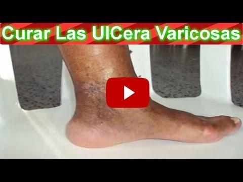Remedio Natural Con Gel De Sábila Para La Ulcera Varicosa