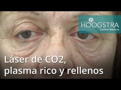 Láser de CO2, plasma rico y rellenos (16130)