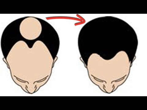 Easy Solution for Hair Loss from YouTube · Duration:  3 minutes 18 seconds