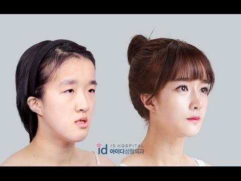 [Let me in Vietsub] Phẫu thuật thẩm mỹ Hàn Quốc - phần 6
