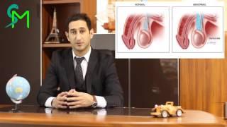 видео Врач андролог: особенности специальности, советы врача