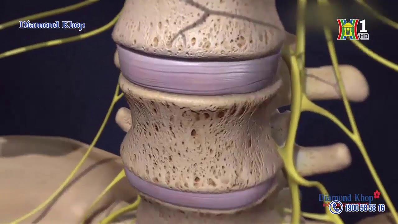 Thoái hóa cột sống thắt lưng và phương pháp điều trị từ Nhật Bản