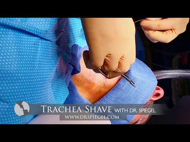Trachea Shave Procedure