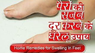 पैरो कि सुजन दूर करने के घरेलू उपाय | Home Remedies for Swelling Feet in Hindi