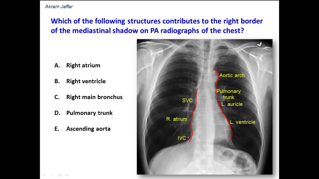 What constitutes the borders of the mediastinal shadow in a chest x ...