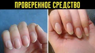 Как быстро отрастить ногти которые никогда не сломаются простое средство из 4 компонентов