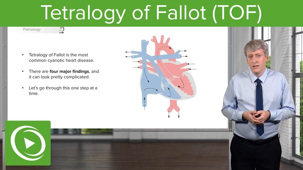 Tetralogy of Fallot (TOF) – Pediatrics | Lecturio