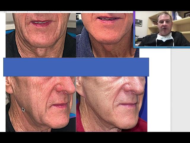 Male Facelift -  Dr. John Burroughs from Springs Aesthetics in Colorado Springs