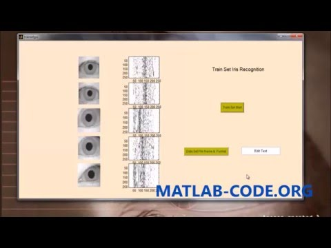IRIS RECOGNITION USING MATLAB