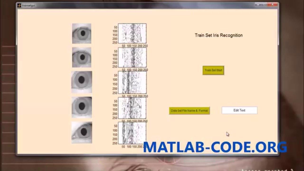 IRIS RECOGNITION USING MATLAB