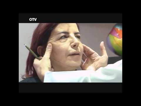 داليا والتغيير Face Lifting in beirut Lebanon by Dr Toni Nassar