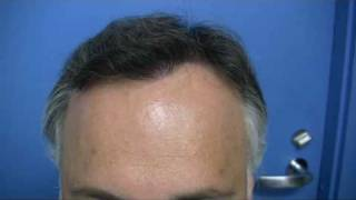 Hair Transplant by Dr Hasson - 5732 Grafts - 1 Session