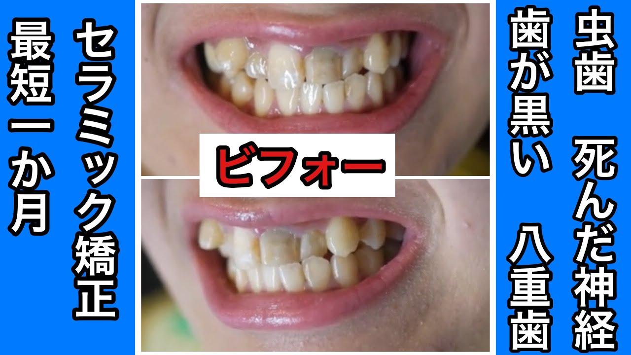 蟲歯 八重歯 セラミック矯正 抜歯ケース 1/2 - YouTube