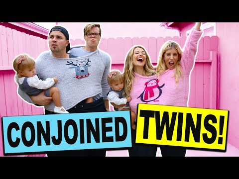 CONJOINED TWINS DANCE BATTLE CHALLENGE with REAL TWINS!! (Boys vs Girls) ** MOST ADORABLE **