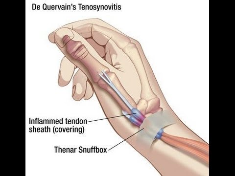 De Quervain's Tenosynovitis - YouTube Y Intersection Sign