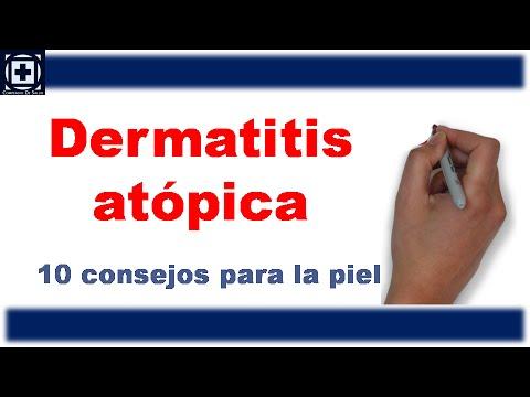 Dermatitis atopica, algo que debes saber y 10 consejos