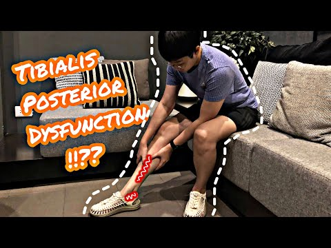 มีอาการปวดหน้าแข้งด้านใน หลังจากการวิ่งออกกำลังกาย เล่นกีฬา สามารถรักษาด้วยตนเองอย่างไรได้บ้าง !!??