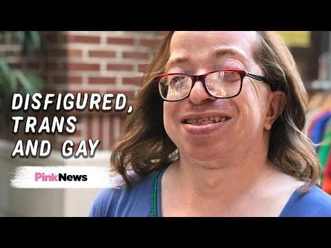 Surviving gender dysphoria as a disfigured, transgender, gay woman thumbnail