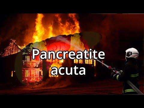 PANCREATITE ACUTA: Una condizione improvvisa adesso - Spiegazione