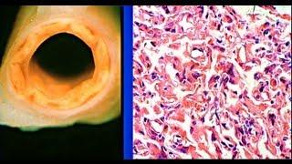 Drug-eluting stent - Cardiology PowerPoint Presentation