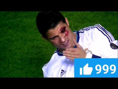Криштиану роналду разбил голову во время матча