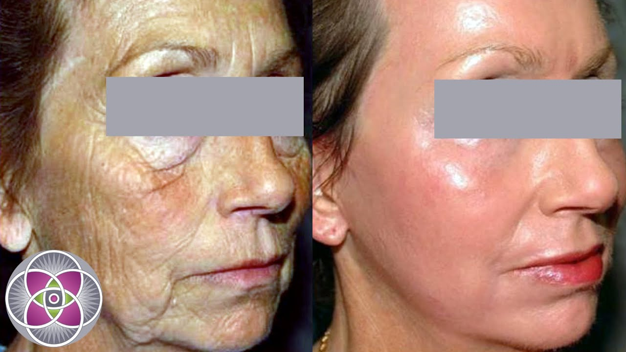 Spread facial laser procedure REAL