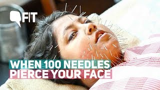 Cosmetic Acupuncture: I Got 100 Needles Pierced on my Face for Beauty and Lived to Tell the Tale