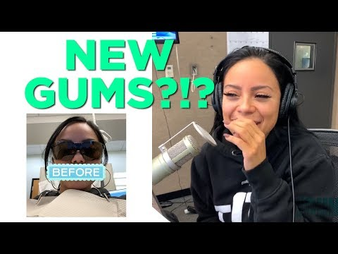 In-Studio Videos - Someone Got Their Gums Reduced