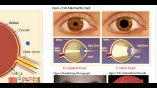 OAT: Anatomy of the Eye (Cornea, Aqueous Humor, Lens, Vitreous Humor, and Retina)
