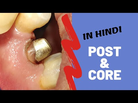 Post and core in Hindi | Patient education video