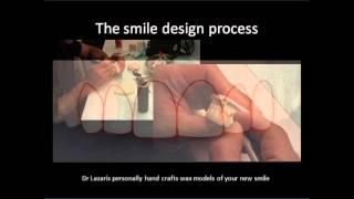 smile design process
