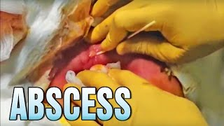 Most PUS ever drained by me! EVER!