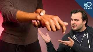 Does Knuckle Cracking Cause Arthritis?