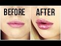GET BIG LIPS FAST! Lip Voltage Lip Plumper: First Impressions (Review+Demo)