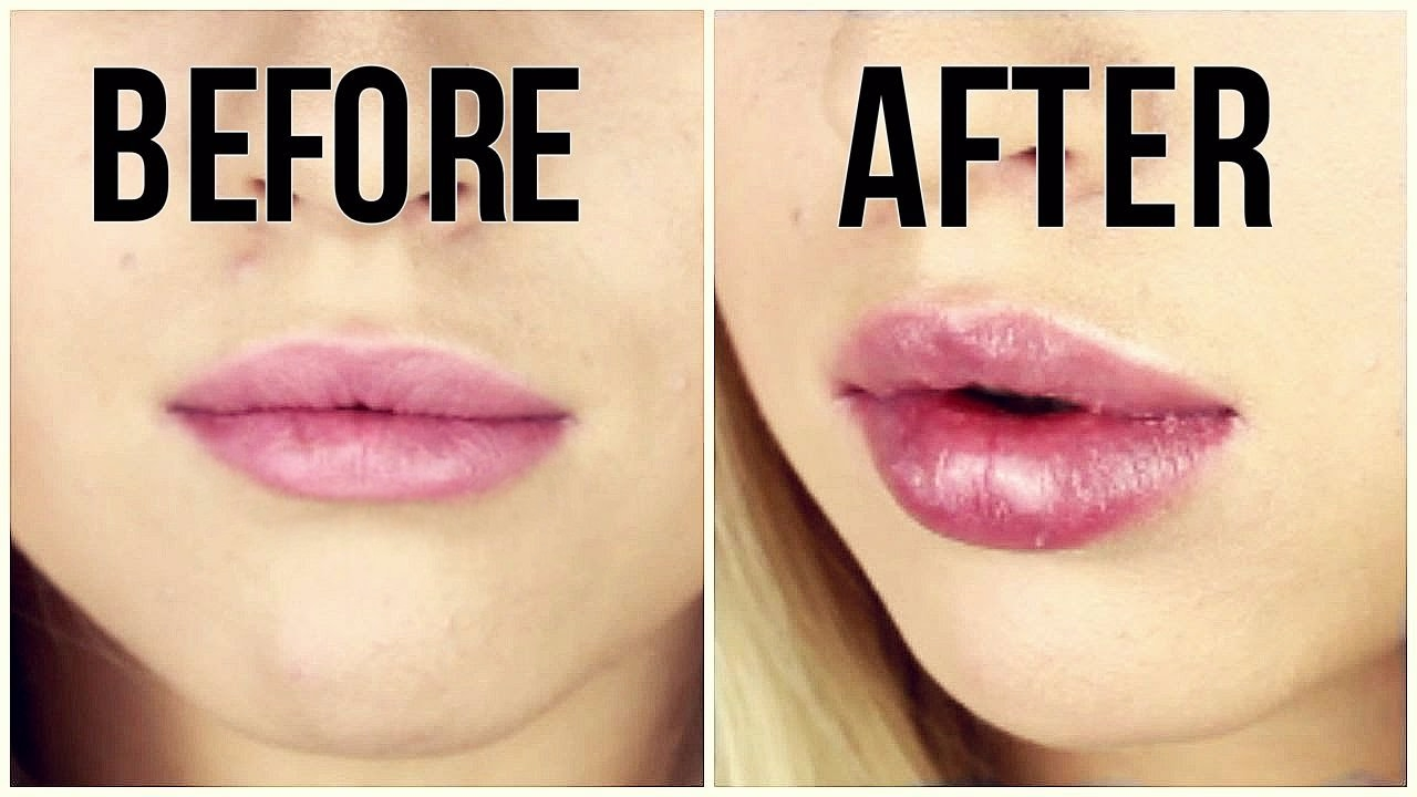 Image result for before after lip plumper