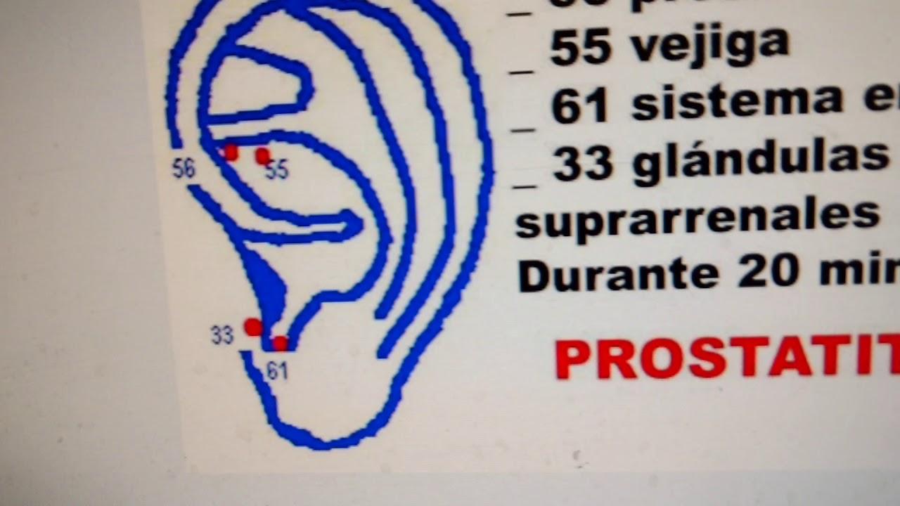 cura para la prostatitis sin drogas