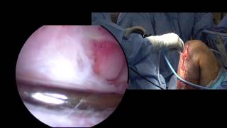 Gambar cover Anatomic ACL Reconstruction using ENDOBUTTON* CL BTB