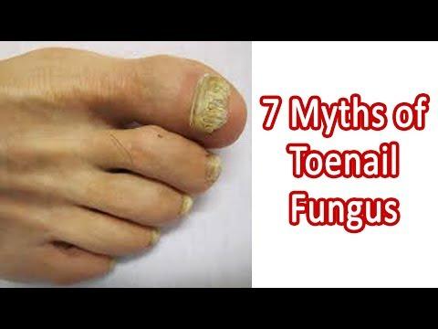 toenail-fungus-infection---7-myths-of-toenail-fungus