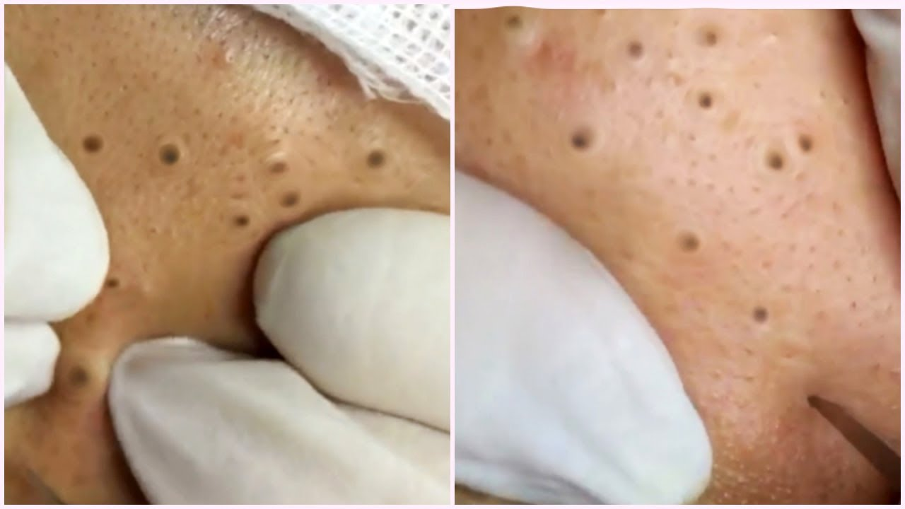 Blackheads Removal Best Pimple Popping Videos