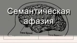 видео Семантическая афазия. Обследование и реабилитация больных