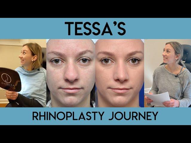 Tessa's Rhinoplasty Journey