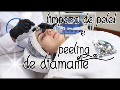 Benefícios do PEELING  DE DIAMANTE e LIMPEZA DE PELE!