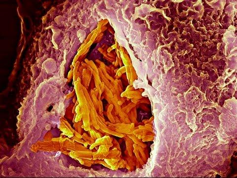 Как выявить туберкулез? Заражение, проникновении палочки в организм