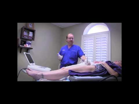 Tampa Pelvic Congestion Syndrome information: Dr. Pittman Vein911 Tampa Vein Treatment Center