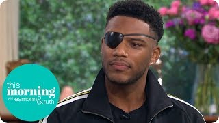 Love Island's Theo on the Champagne Cork Accident That Left Him Blind in One Eye | This Morning