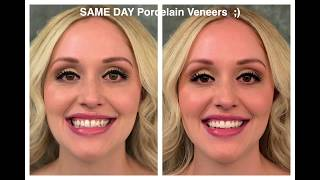 "Beautiful PORCELAIN VENEERS - ""Hollywood Smile"" IN A DAY!!"