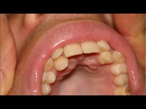 invisalign and severely crowded teeth youtube